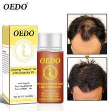 Herbal Ginseng Hair Care Essence Treatment For Men And Women Hair Loss Fast Powe