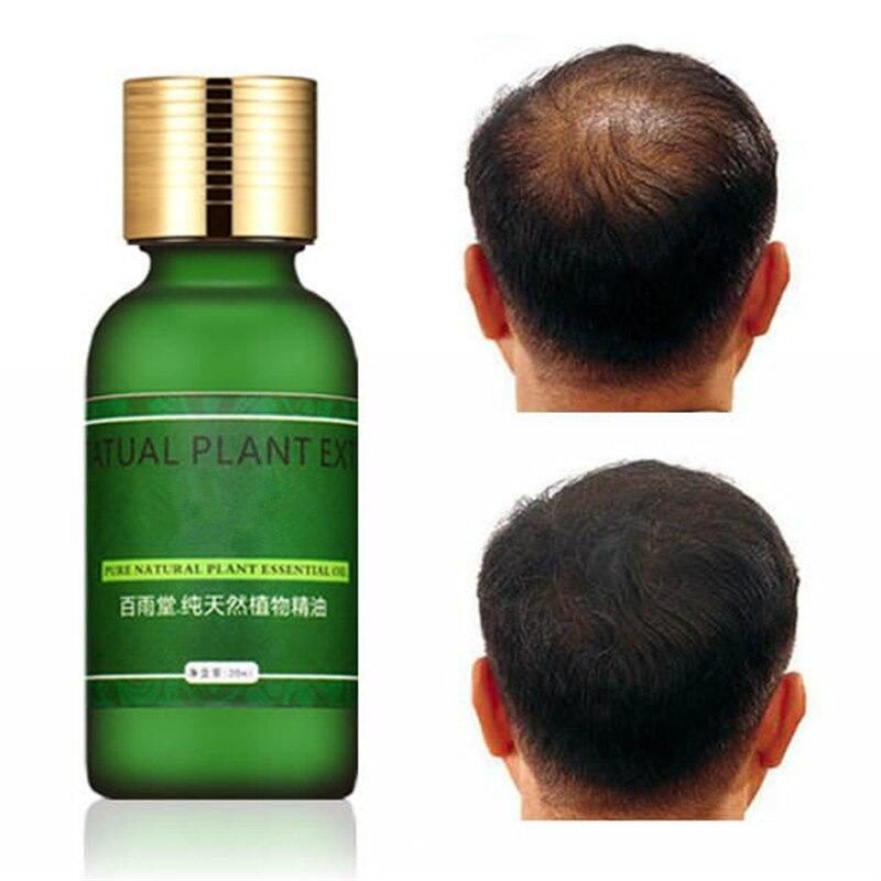 La Croissance des cheveux Sérum Soins Des Cheveux La Croissance des Cheveux Huile Essentielle Authentique Herbes Cheveux Liquide De Perte Soins de Santé Essence Beauté Dense