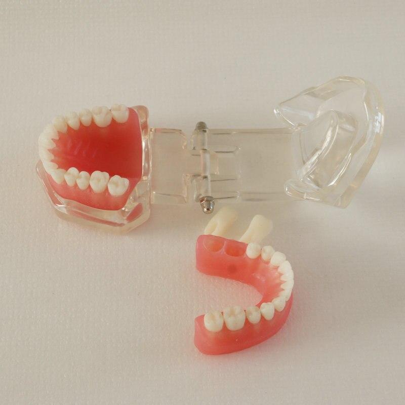treinamento dental 28 pçs dentes goma macia