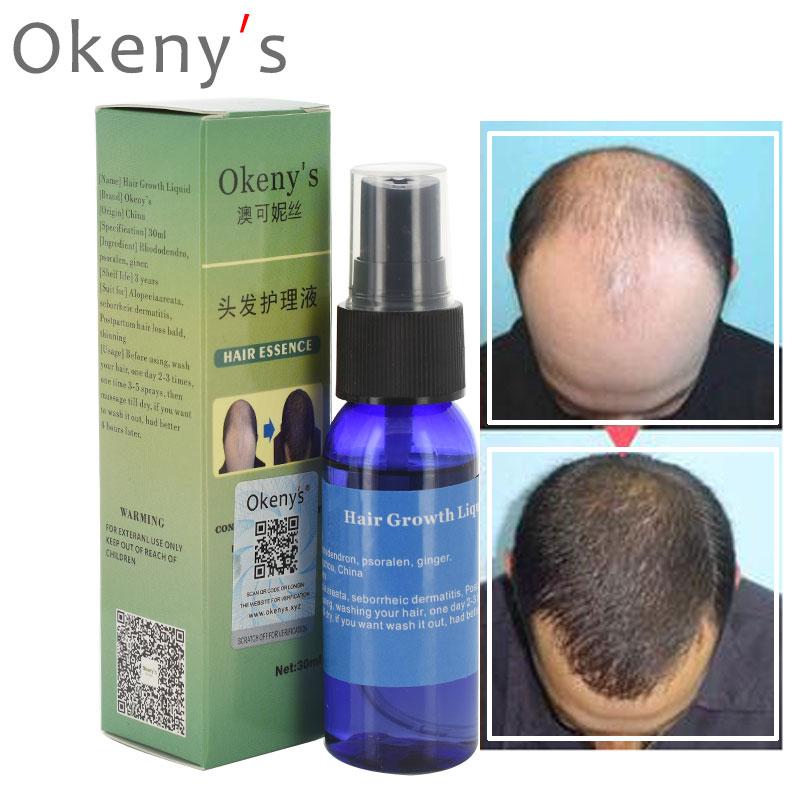 Okeny's Andrea Yuda Pilatory Hair Growth Product Liquid Fast Hair Growth Spray Hair Loss Treatment  30ml Anti Gray Hair