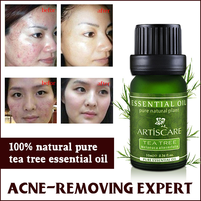 ARTISCARE 100% Tea Tree Pure Essential Oil Face Care Skin Acne Treatment Oil Blackhead Remover Anti Scar Spots Facial Beauty цена