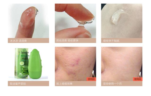 1 PC Aloe Vera Gel Soothing Moisturizing Whitening Cream Anti-Acne Face Care Free Shipping