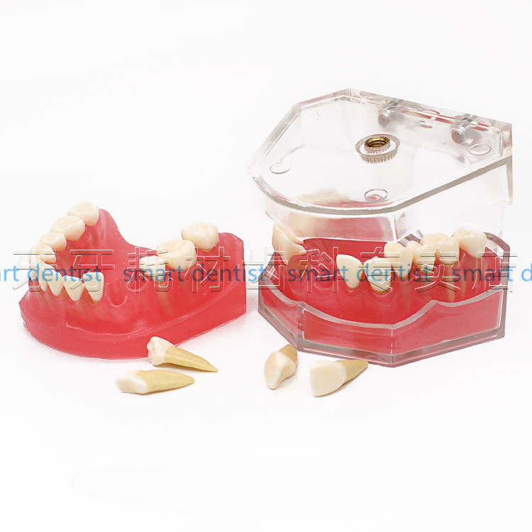 New Arrival Soft Gingival Dental Mold Removable Teeth May Gingival Oral Teaching Model Gingival Practice teeth Mold teeth Model new arrival high quality dental implant demonstration bracket simulation teeth model teeth removable