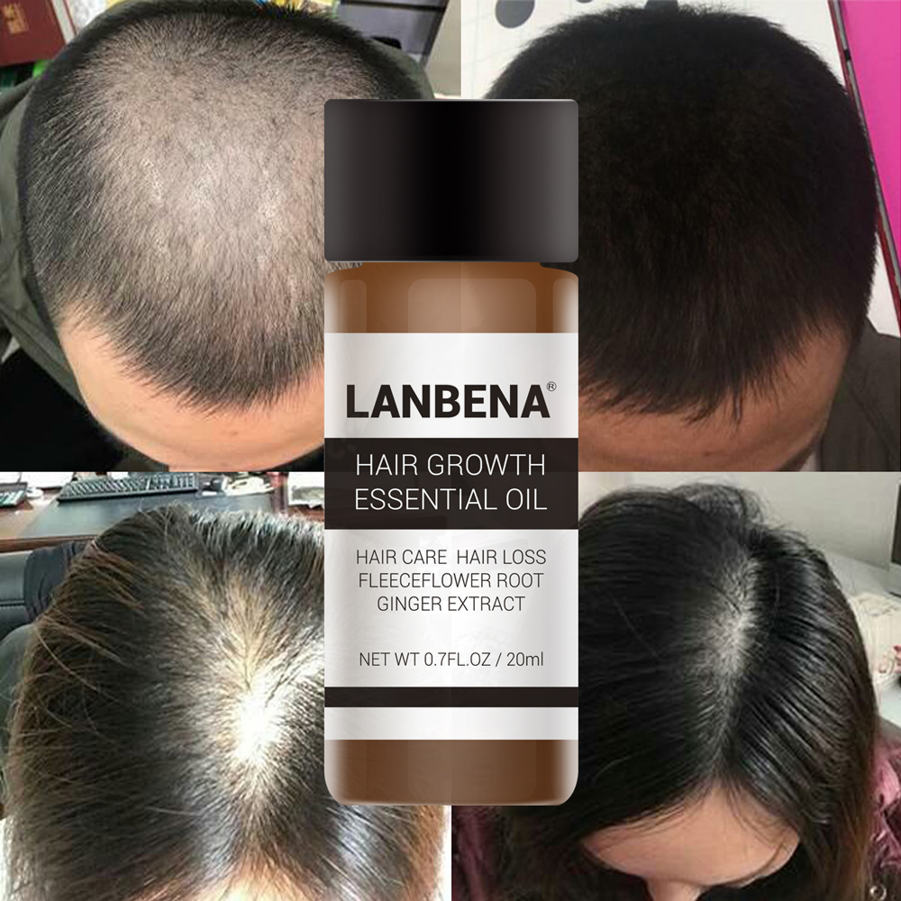 LANBENA Fast Powerful Hair Growth Essence Products Essential Oil Treatment Preventing Hair Loss Hair Care Andrea 20ml