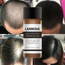 LANBENA Fast Powerful Hair Growth Essence Products Essential Oil Treatment Preventing Loss Care Andrea 20ml !