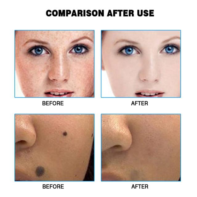 Skin Care Tools Laser Freckle Tattoo Skin Spots Mole Removal Pen pimple Verrugas Wart Tag Dark Spot Remover For Face Machine Pen 3