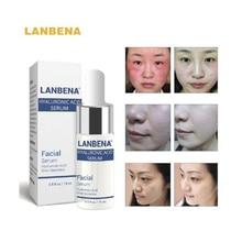 LANBENA חומצה היאלורונית סרום לחות טיפוח העור מיידית וינגלים וינקלים קמטים קרם פנים קרם פנים אקנה Blackhead