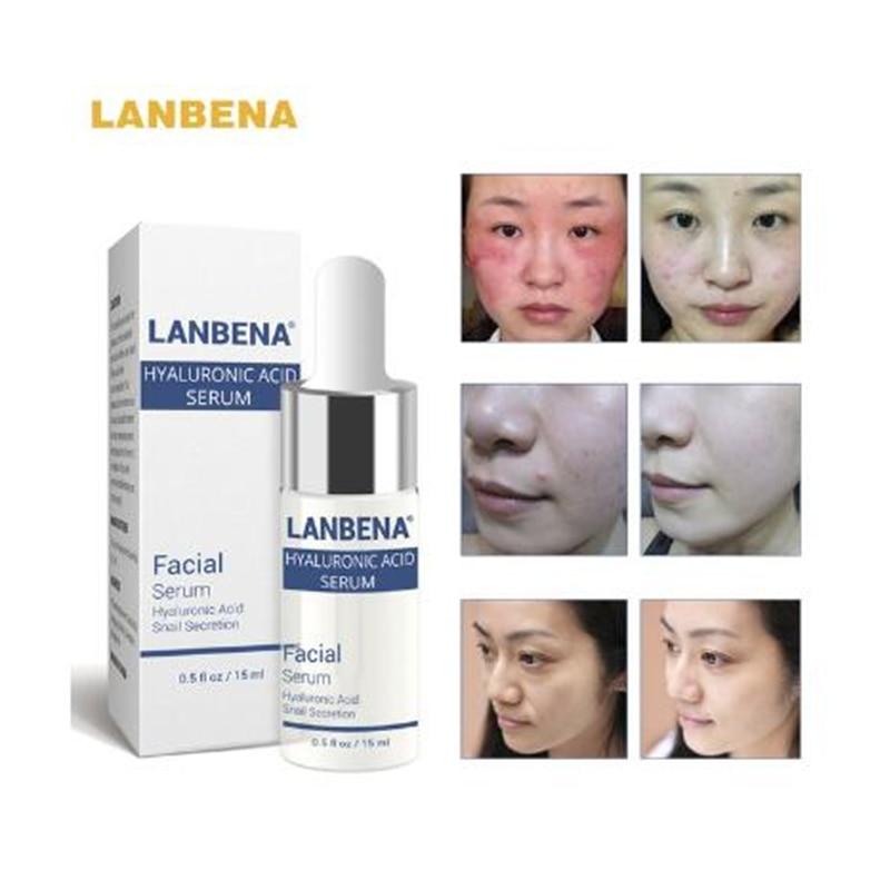 LANBENA Hyaluronsav hidratáló szérum Bőrápolás Immediately - Bőrápolás