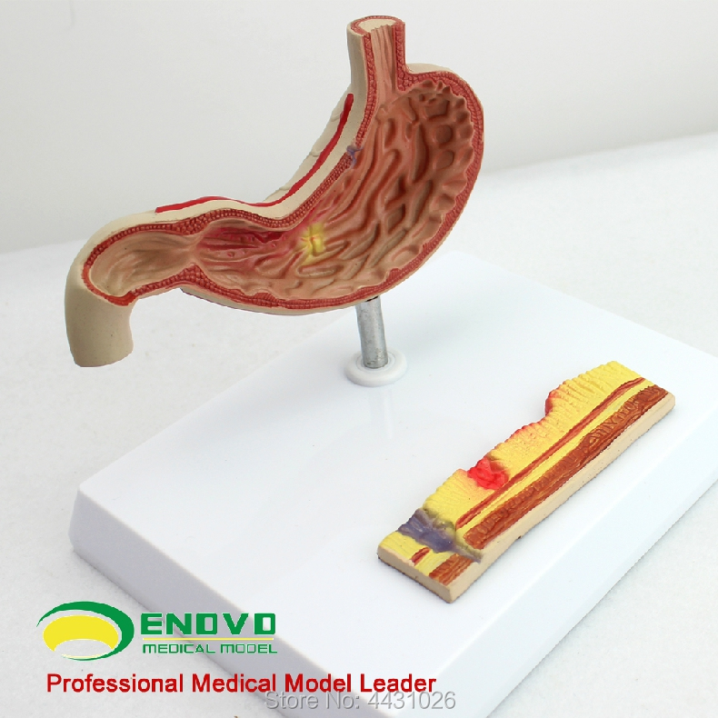 Model of digestive system of digestive system of gastric ulcer model gastric
