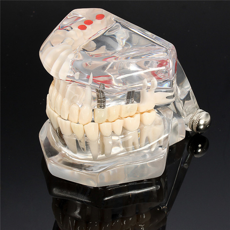 New Dental Implant Disease Teeth Model With Restoration Bridge Tooth Dentist For Medical Science Dental Disease Teaching Study аксессуар для музыкальных инструментов denn стойка для синтезатора dks001