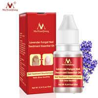 10ml Effective Nail Fungus Treatment Anti Fungal Toenail Repair Lavender Essential Oil Nail Care Onychomycosis Treatment Liquid