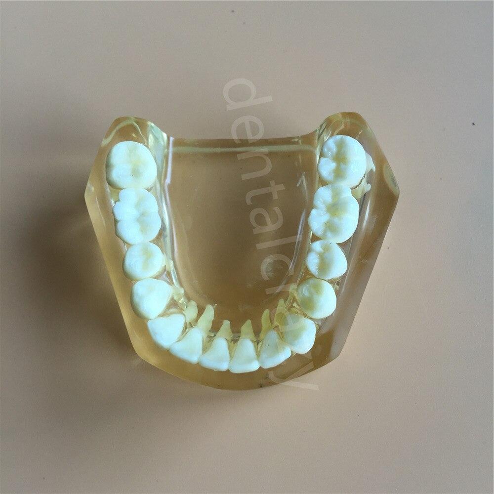 Modèle d'implant dentaire avec pont et caries 1 dent dentaire d'implant