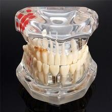 Имплантат стоматологических заболеваний модель зубов с реставрационным