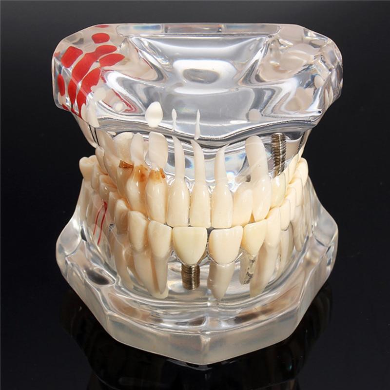 Implant Dental Disease Teeth Model With Restoration Bridge Tooth Dentist For Medical Science Dental Disease Teaching Study Tool