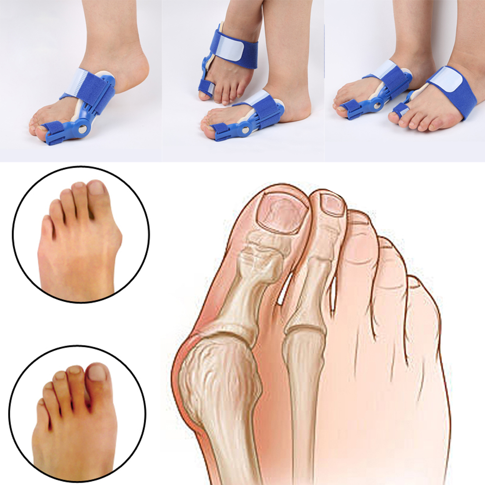 The bunion corrector 1