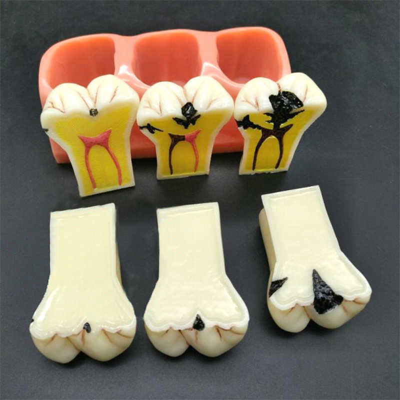 1 pc materiały stomatologiczne Lab 4 razy próchnica demontaż Model proteza choroba Model zębów dla kliniki dentystycznej
