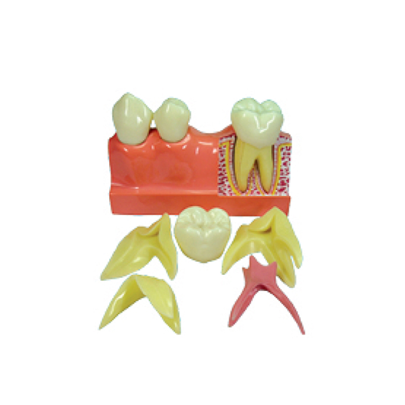 4 Times Caries Disassembling Model 4:1 Dental Molar Caries Development Model soarday 1 piece 2 times dental pathological model display deep caries shallow caries teaching model