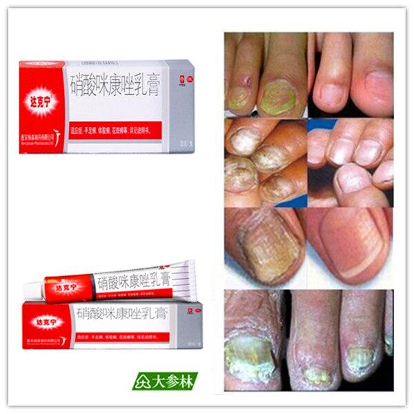 Как вылечить ногти после наращивания и шеллака