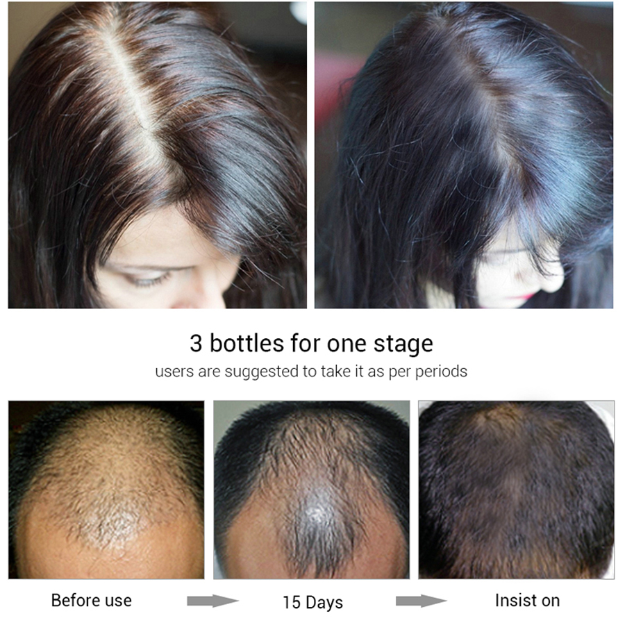 Image 4 - efero Powerful Hair Growth Serum Prevent Hair Loss Essential Oil Longer Thicker Prevent Baldness Products Professional Hair Grow-in Hair Loss Products from Beauty & Health