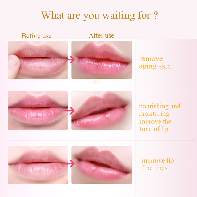 10PCS Women Lip Masks Gold 4