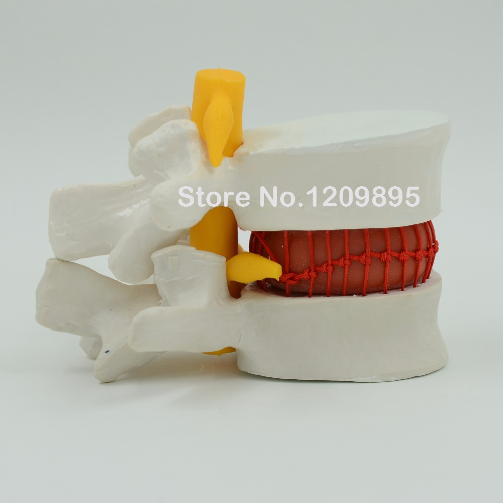 Large lumbar spine blood cell model, lumbar disc herniation demonstration,human spinal medical model free shipping