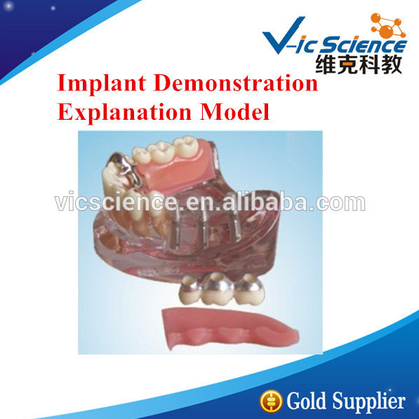 Implant Demonstration Explanation Model/Implant Demonstration Model/Implant Explanation Model attachments retaining implant overdentures