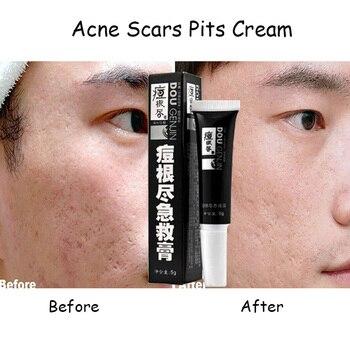 crema para eliminar manchas de acne