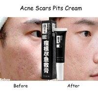 Jon De Acne Pit Scar Repair Cream