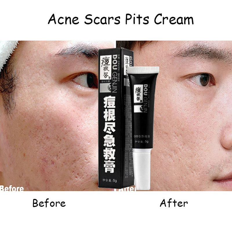 Acne Scars Pit Cream lightening anti acne cream to remove