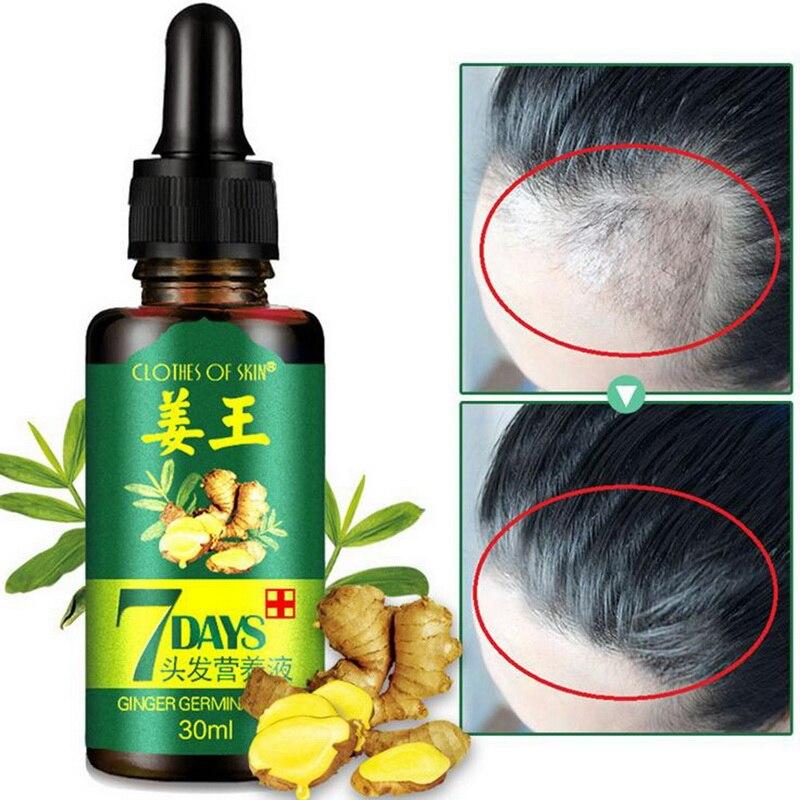 30ml Hair Growth Serum Essence For Women Men Anti Preventing Hair Loss Alopecia
