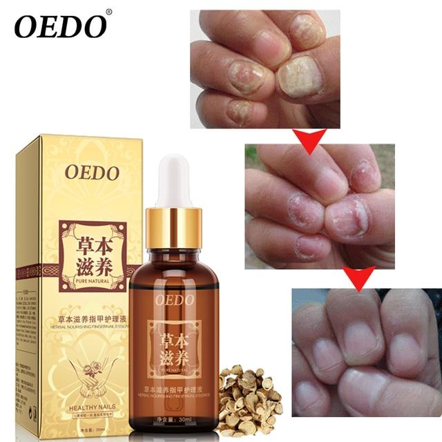 Herbal Nourishing Nail Treatment  1