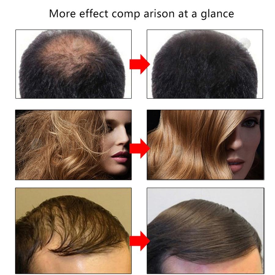 EFERO Hair Growth Serum Oil Natural Essence Beard Growth Serum Faster Grow Eyelashes Shampoo Hair Loss Product Hair Care Serum