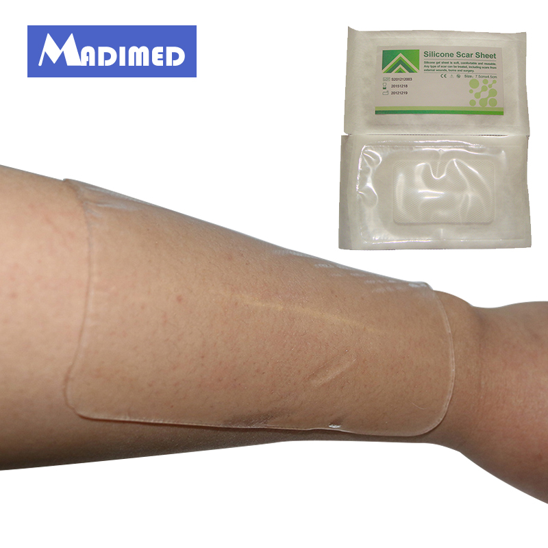 MADIMED Macure 7.5CM*4.5CM Silicone Gel Scar Therapy Patch Scar Away 1 Piece шарф 0 scar