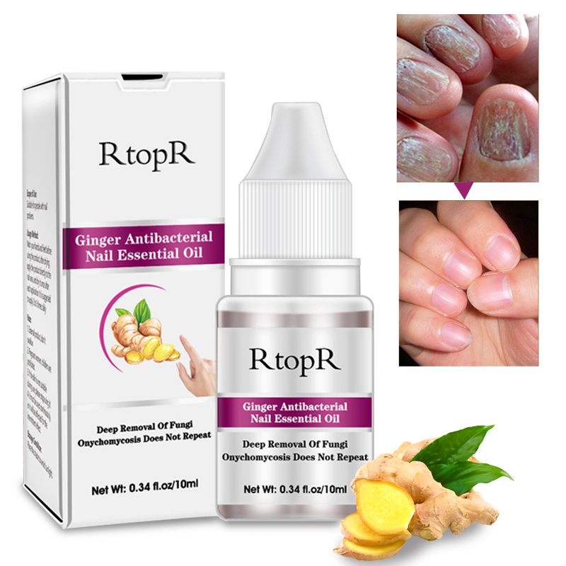 Best Top 10 Nail Oil Gel Fungus List And Get Free Shipping H259h9c9