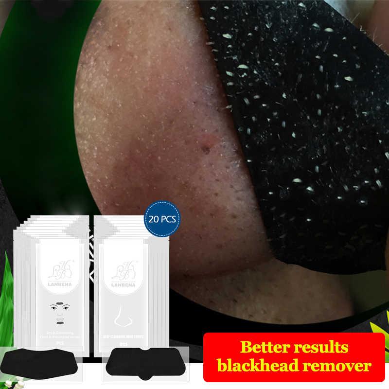 นาฬิกา LANBENA Blackhead Remover หน้ากากจมูก + คางหน้าผากหน้ากากดำสิว Pore Strip สีดำหน้ากาก Peeling Skin Care 20PCS