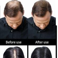 Hair Building Fibers Hair Loss Treatment Spray Hair Fiber Powder 25g