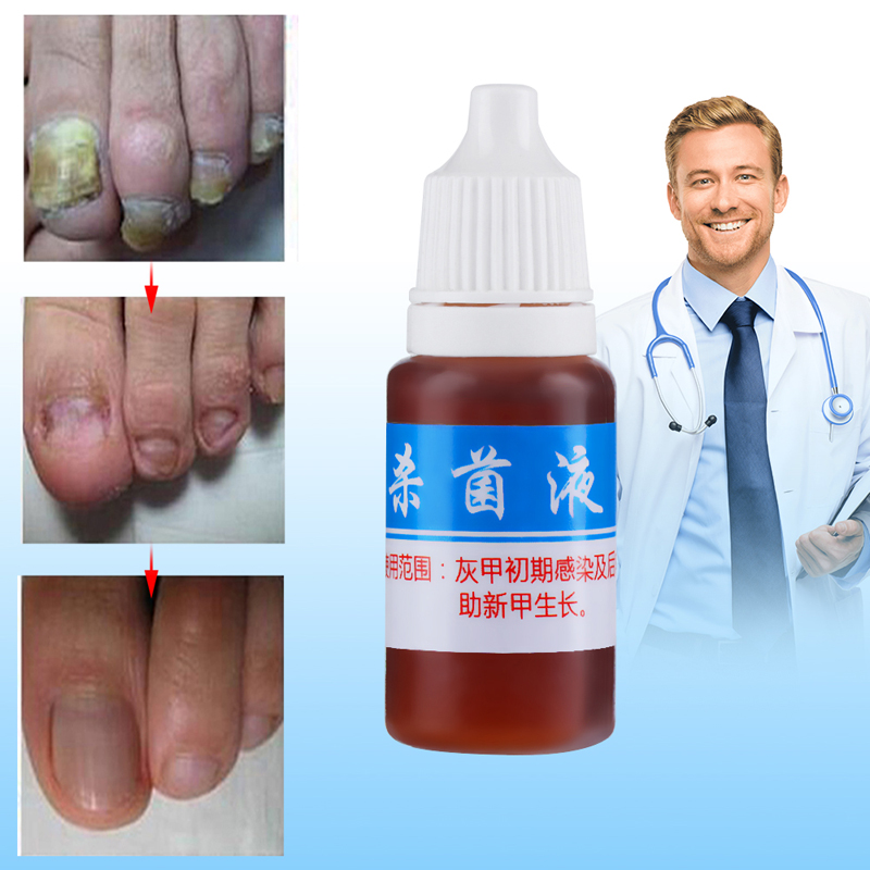 10ml Toe Nail Fungus Treatment Kills 99.9% Bacteria Anti Fungal Nail Infection Remove Fungus Nail Cure Treatment Onychomycosis