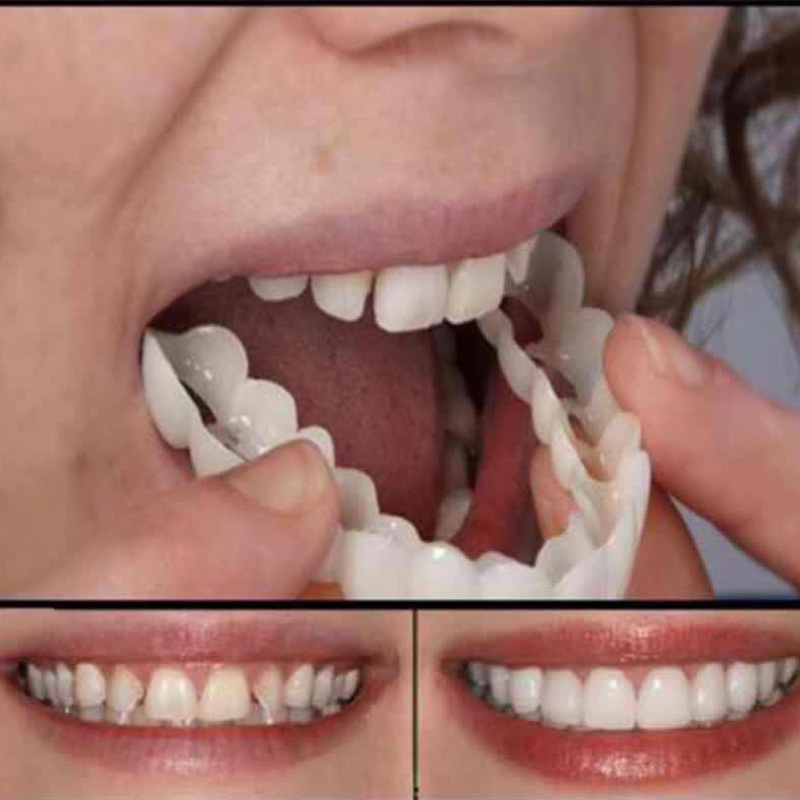 Beautiful Smile Veneers Teeth Braces Comfort Fit Cosmetic Wear resistance Teeth Denture Teeth Top Cosmetic Veneer Simulation