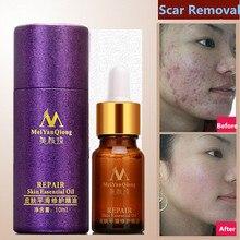 Meiyanqiong pielęgnacja twarzy rozstępy usuwanie blizn zabieg pielęgnacyjny krem trądzik plamy skóry whitening usunąć trądzik twarzy olejek