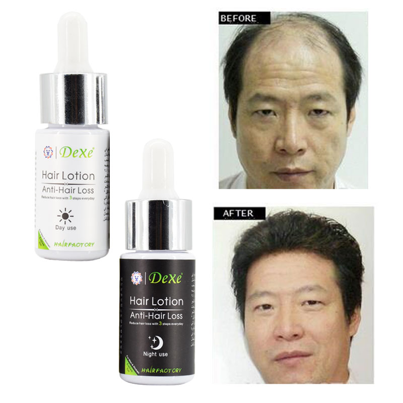 30ml Potent Type Hair Loss Product Fast Hair Growth Grow Restoration Yuda Pilatory Stop