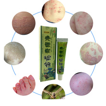 Body Herbal Material Psoriasis Creams and Eczema Psoriasis Ointment Skin Care Health