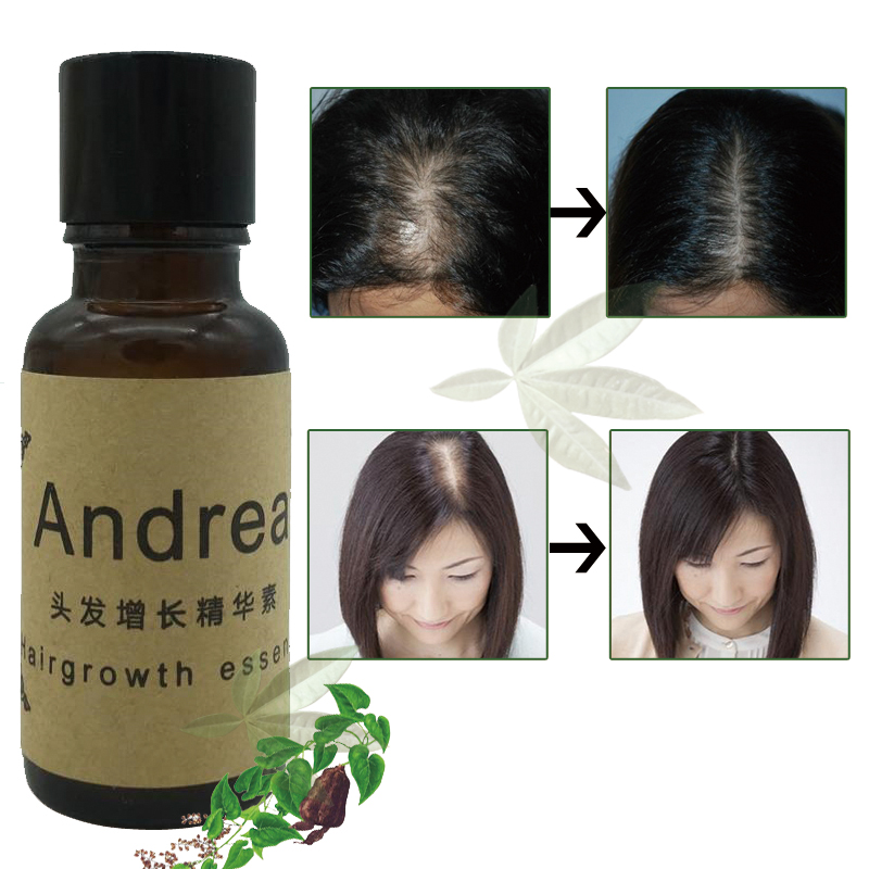 Andrea Hot Fast Hair Growth Pilatory Essence Human Hair Oil Baldness Anti Hair Loss Product Alopecia Hair Styling Care Men Women