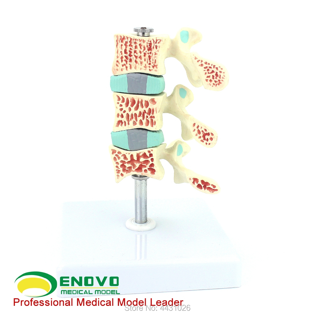 ENOVO A model of bone pain in the lumbar spine model of human osteoporosis model