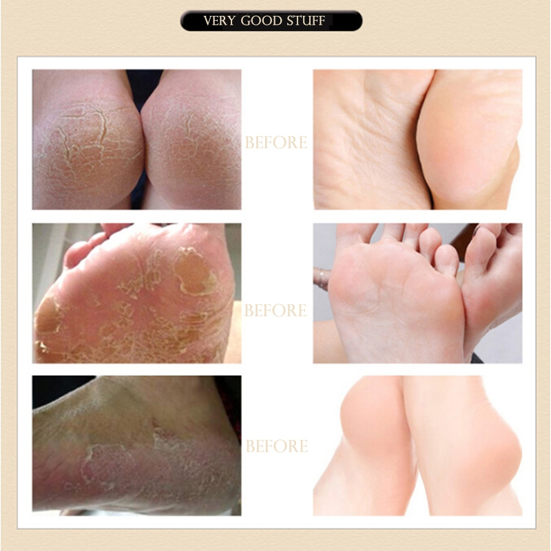 US $2 54 22% OFF|Natural Herbal Baby Feet Exfoliating Anti Drying Crack  Foot Cream Foot Mask Effective Anti Fungal Dead Skin Feet Care-in Feet from