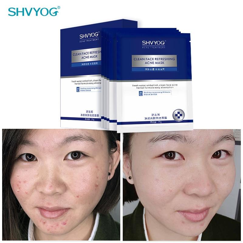 SHVYOG Anti-Acne Face Sheet Mask Control Oil Deep Hydration Mask for the Face Shrink Pores Oil Control Facial Skin Care