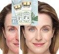 Envío libre kgf-ii esencia reparación capillarie piel sensible cicatriz del acné esencia Alivia El Enrojecimiento