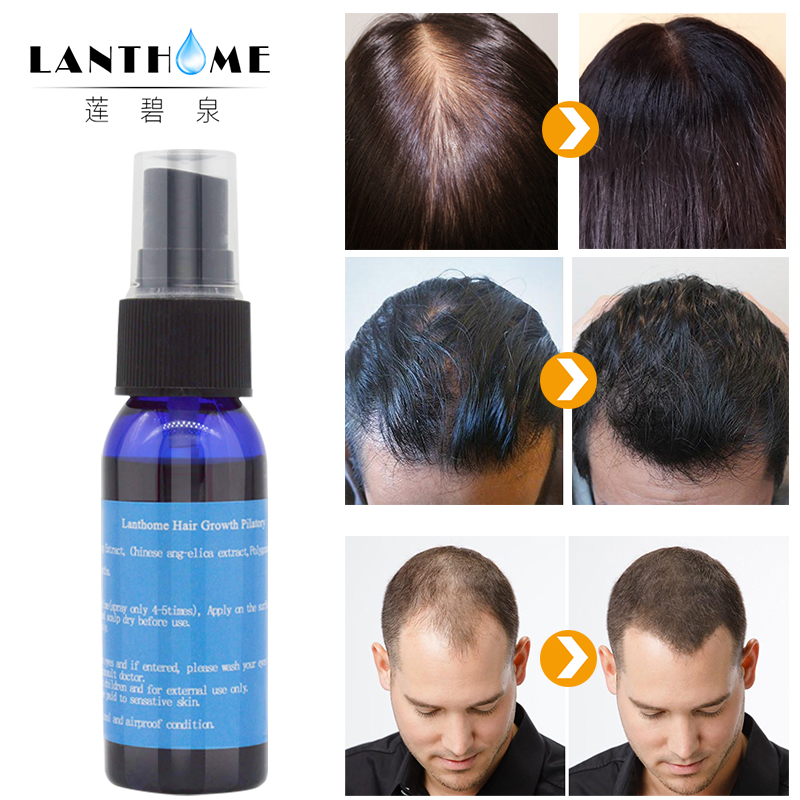3PC Lanthome Fast Hair Growth Essence Dense Hair Root Regrowth Treatment Facial Hair Men Gromming Growth Spray For Men And Women