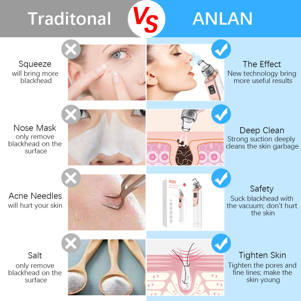 ANLAN Blackhead Remover Vacuum Pore Cleaner Acne Comedones Removal Black Head Remover Face Care Pimples Tools Comedone Extractor