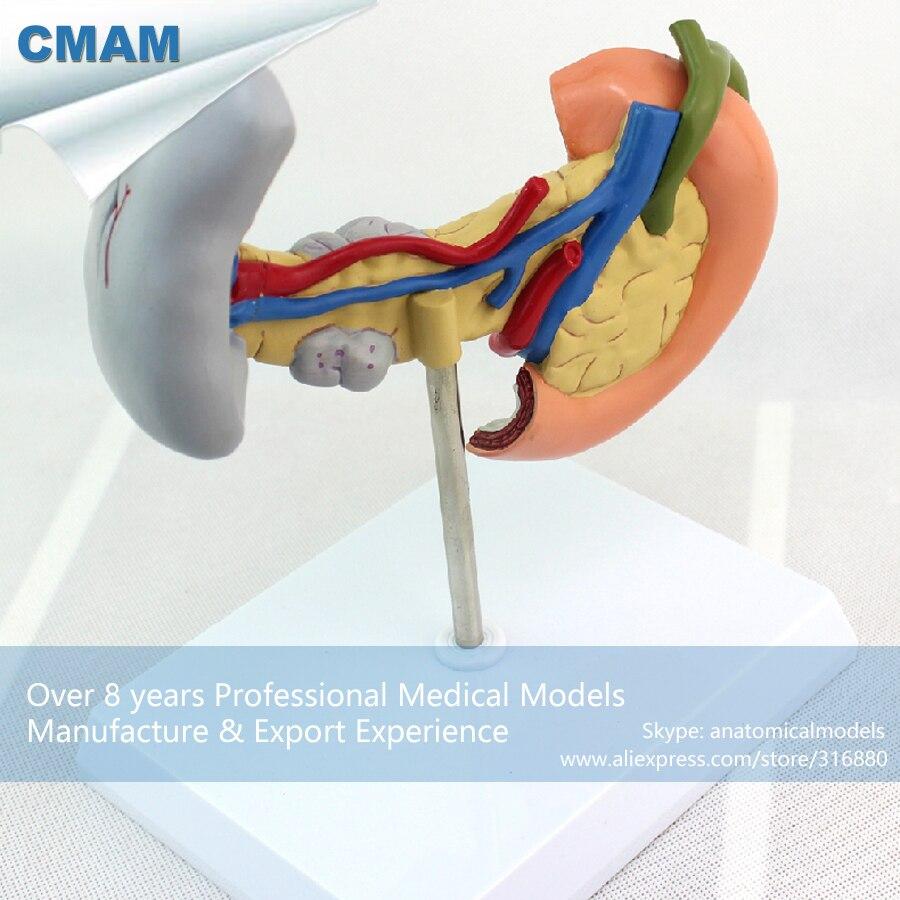 12542 CMAM VISCERA05 Human Pancreas, Spleen Pathological Diseases ...