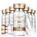 QYANF 100% растительный экстракт Улитка жидкая отбеливающая шрам акне порока ампулы гиалуроновой кислоты увлажняющая сыворотка для лица 10 мл